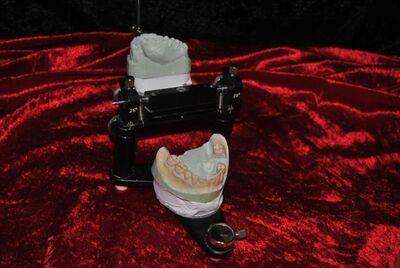 Dentsply Detrey Rational Artikulator Frasaco 14 Zähne - Zeuthen